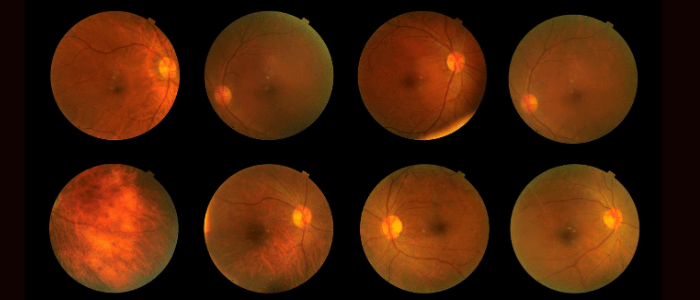 New stem cells discovered in the eye may aid development of glaucoma therapy